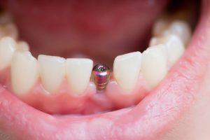 Qu'est-ce qu'une restauration complète de la bouche